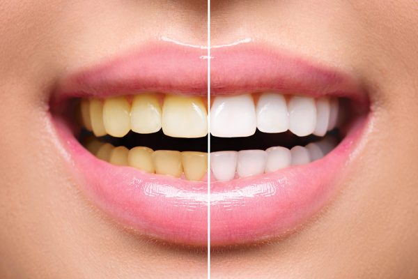 Crofton Dental Care - Teeth Whitening Results