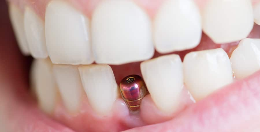 Single Dental Implant Fareham Hampshire - Crofton Dental Care