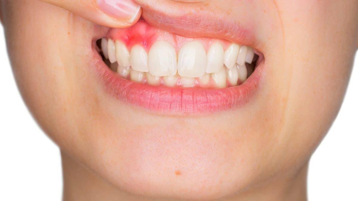 Dental abscess Fareham Crofton Dental Care Emergency Dentist