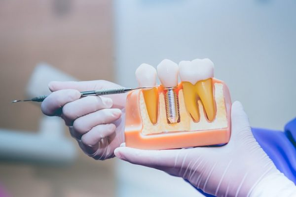 dental implants 1024x683 1 - Crofton Dental Care Dental Practice Fareham
